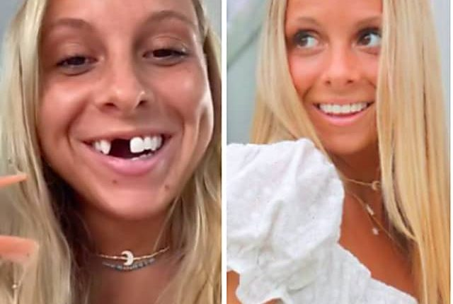 Dating With Dentures: NJ TikTok Star Finds Reasons To Smile